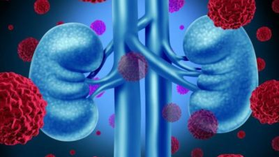 Kidney Cancer Drugs Market