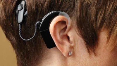 Artificial Cochlea Market