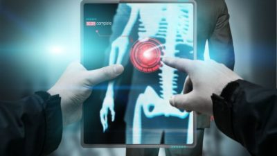 Digital Mobile X-Ray Devices Market