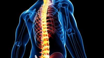 Spinal Cord Stimulators Market