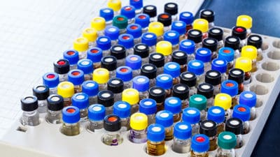 Enzyme-Linked Immunosorbent Assay (ELISA) Testing Market