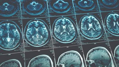 Neurological Disorder Diagnostics Market