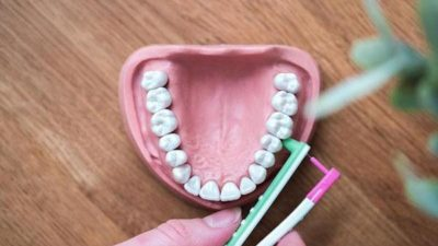 Interdental Cleaning Products Market