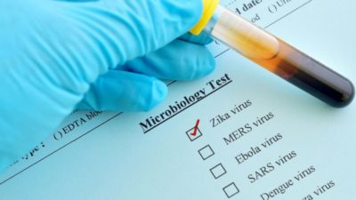 Zika Virus Testing Market