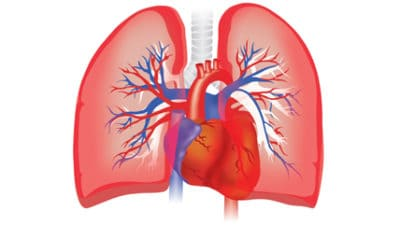 Pulmonary Arterial Hypertension Market