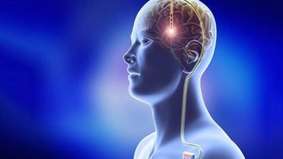Deep Brain Stimulation in Parkinson's Disease Market