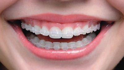 Orthodontic, Invisible Orthodontic and Lingual Orthodontic Market