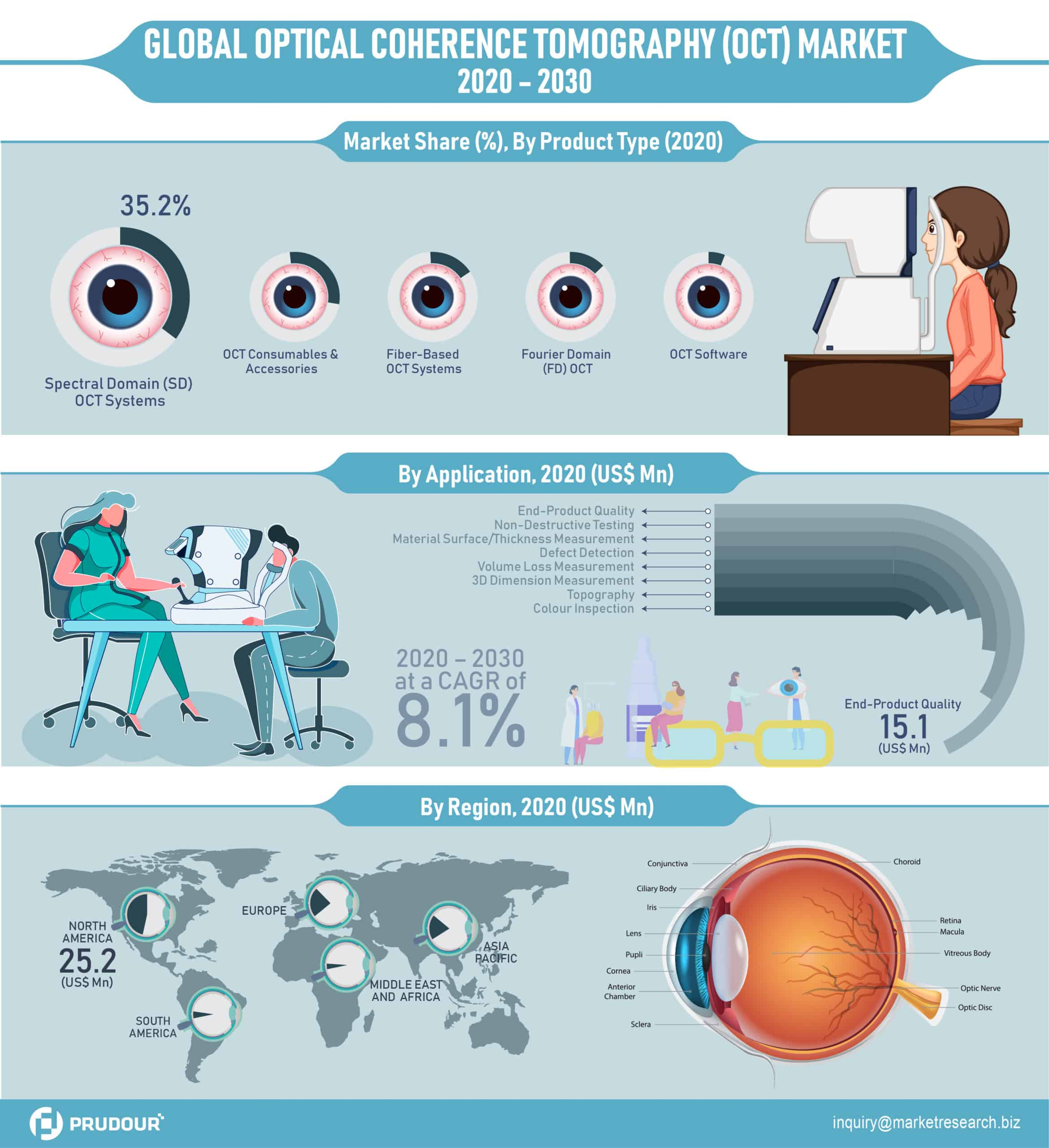 Global Optical Coherence Tomography (OCT) Market Infographics