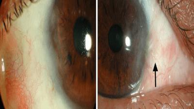 Global Ophthalmic Mitomycin C Market