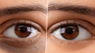 Global Eye Skin Care Market
