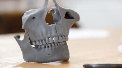 3D Medical Implants Market